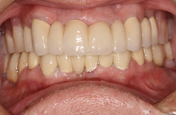 after corrected tooth decay