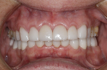 porcelain veneers restoration after