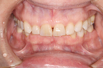 before porcelain veneer restorations