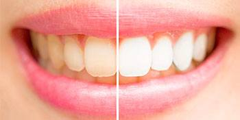 before and after of whitened smile