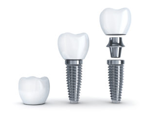 dental implant 3d model