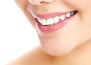 Woman's bright white smile.