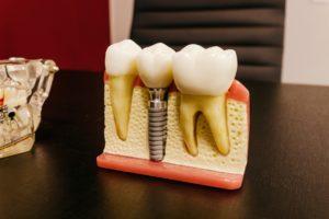 Model of dental implant for jawbone preservation.